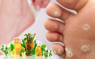 Обзор народных рецептов для лечения мозолей на пальцах ног