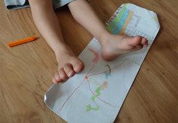 Правила подбора и эффективность ношения ортопедических стелек для лечения плоскостопия у детей