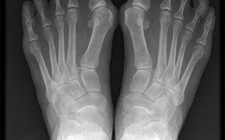 Что такое вальгусная стопа: причины, симптомы и диагностика