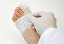 Что такое, особенности и лечение флегмоны нижних конечностей