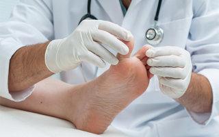 Что такое конская стопа: причины, симптомы и методы лечения