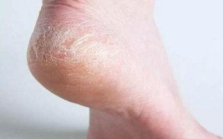 Почему сохнет кожа на ногах и что делать: обзор подручных и аптечных средств