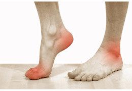 Боли в ногах при плоскостопии у взрослых: что делать и как лечить