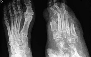 Что такое стопа Шарко (диабетическая остеоартропатия): причины появления, симптомы и лечение