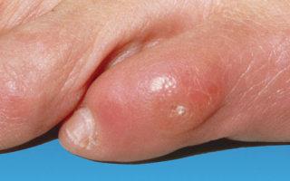 Мозоль на пальце ноги: обзор аптечных средств и домашних методов лечения