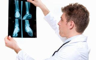 Какой врач лечит плоскостопие у взрослых и детей