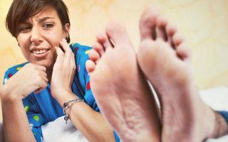 Как избавиться от потливости ног и неприятного запаха: обзор средств и правил гигиены