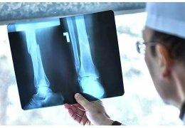 Эффективность рентгенографии при выявлении степени плоскостопия