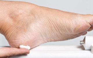 Чем мазать экзему на ногах: обзор кремов и мазей