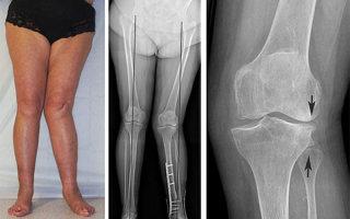 Особенности и лечение вальгуса коленных суставов у детей и взрослых