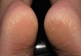 Почему сохнет кожа на пятках и как избавиться от шершавости в домашних условиях