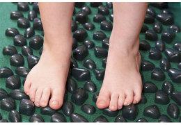 Эффективность лечения плосковальгусной деформации стоп у детей консервативными и хирургическими методами