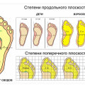 Какие есть виды и формы плоскостопия, их диагностика и определение