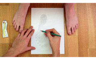 Методы лечения плоскостопия у взрослых: обзор действенных способов