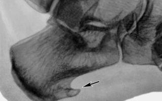 Эффективность лечения шпоры на пятке рентгеном
