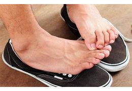 Сильно потеют ноги: причины и методы лечения