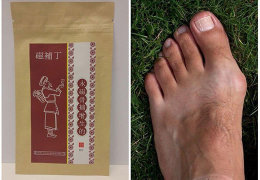 Обзор популярных пластырей от косточек на ногах: правила выбора и использования