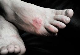 Аллергия в виде сыпи на ногах: причины появления и методы лечения