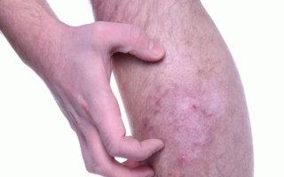 Кожные заболевания стоп и ног: виды, особенности и симптомы