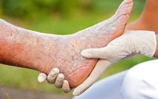 Симптомы гангрены нижних конечностей, этапы развития и методы лечения