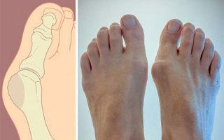 Почему может болеть косточка на ноге около большого пальца и как ее уменьшить