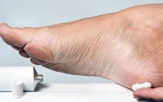 Обзор эффективных кремов и мазей от запаха и потливости ног