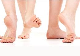 Причины появления и методы избавления от пятен на пятках и стопах ног
