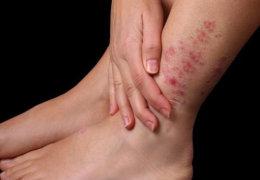 Какая мазь поможет от рожистого воспаления ноги