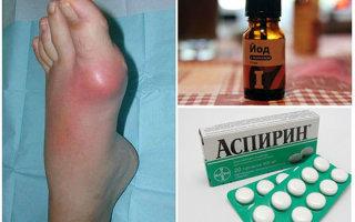 Методика лечения косточки на ноге йодом и аспирином: рецепт, инструкция, эффективность