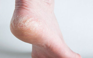 Почему трескаются пятки и какие методы лечения наиболее эффективны