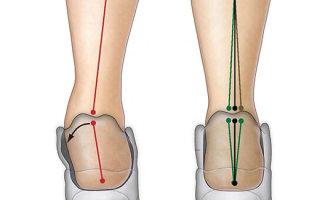 Причины появления гипопронации, методика лечения и необходимость ортопедии (кроссовки, стельки)
