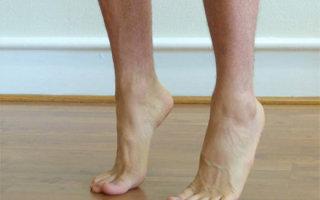 Что такое полая стопа: причины, диагностика и лечение