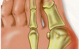 Косточка у большого пальца ноги болит и растет: что делать и как лечить