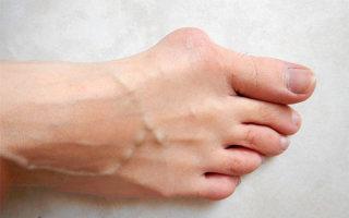Что такое халюс вальгус: причины, диагностика и лечение