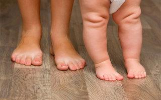 Особенности появления и лечения плосковальгусной стопы у ребенка