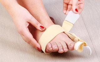 Виды фиксаторов для пальцев ног и инструкция к применению