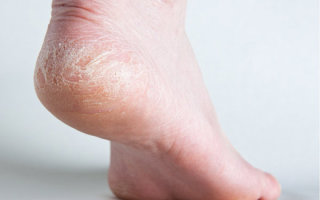 Почему на ступнях облазит и шелушится кожа и что при этом делать