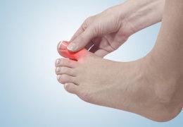 Как лечить панариций на пальце ноги в домашних условиях