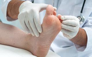 Дисгидротическая экзема стоп: причины, классификация и лечение