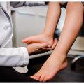 Что такое вальгус стопы у детей: причины, симптомы и прогноз