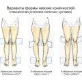 Вальгусная и варусная деформация стопы: основные отличия и признаки