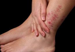 Особенности псориаза на ногах и методы его эффективного лечения
