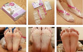 Особенности использования отшелушивающей маски в виде носков для ног