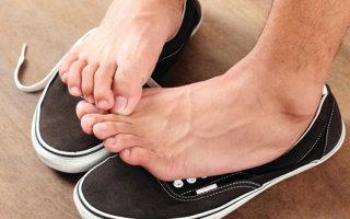Что такое гипергидроз стоп и чем его лечить в домашних условиях
