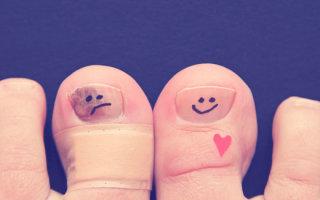 Жжение пальцев ног: причины, лечение и профилактика