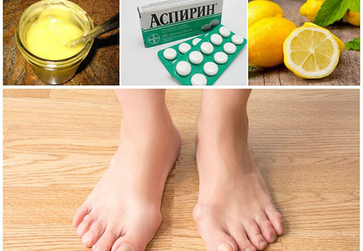 Эффективное лечение косточек на ногах