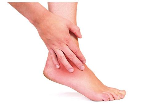 Болят ступни