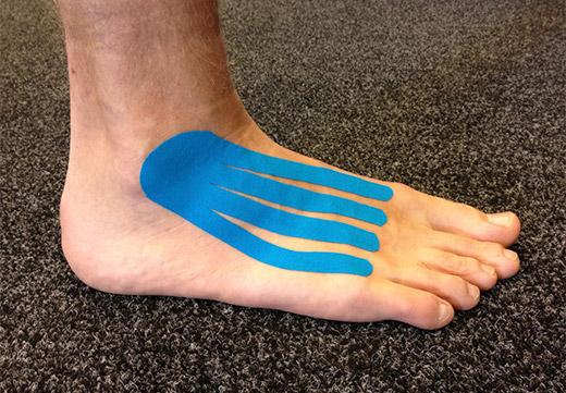 Голубой тейп на ноге