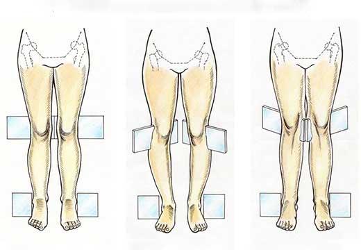 Деформации ног