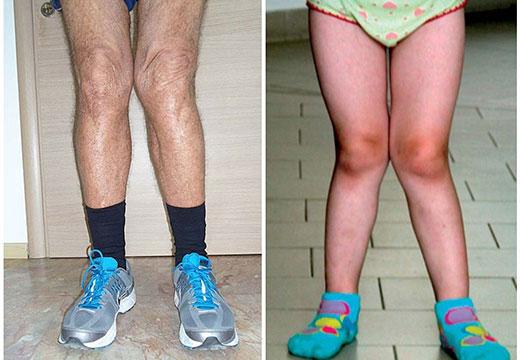 х-образные ноги у взрослого и ребенка
